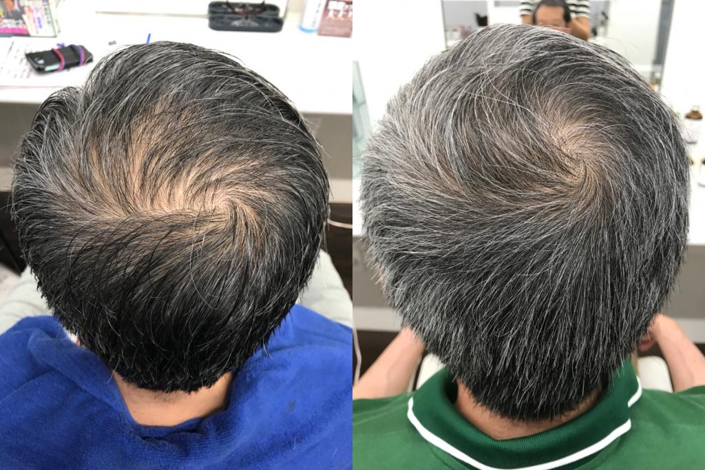 バック:0ヶ月(左)→ 4ヶ月(右)