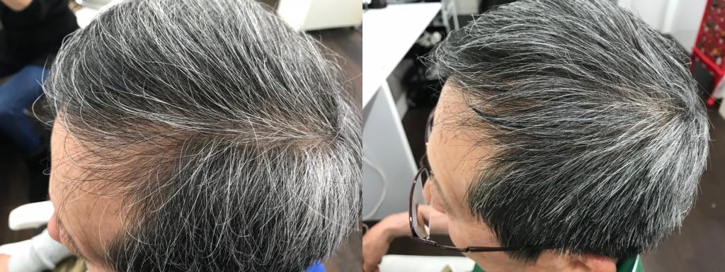サイド:0ヶ月(左)→ 4ヶ月(右)