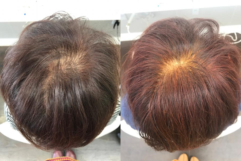 トップ:0ヶ月(左)→ 6ヶ月(右)