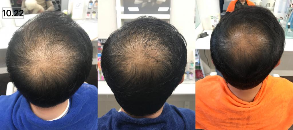 バック:0ヶ月(左)→  3ヶ月(中)→ 6ヶ月(右)