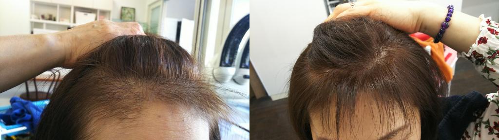 フロント:0ヶ月(左)→ 3ヶ月(右)