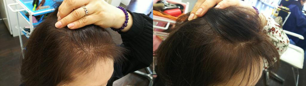 サイド:0ヶ月(左)→ 3ヶ月(右)